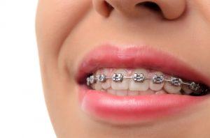 clinica dental tudela de duero
